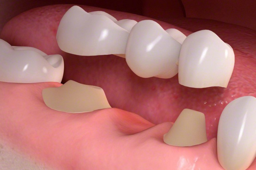 Tooth replacement options in Lewisville