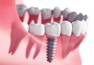 dental-implants-lewisville