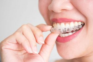 Invisalign Lewisville Coppell